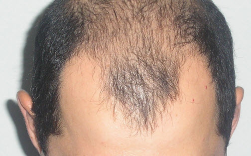 Андрогенное выпадение волос