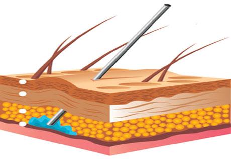Инъекции мезотерапии