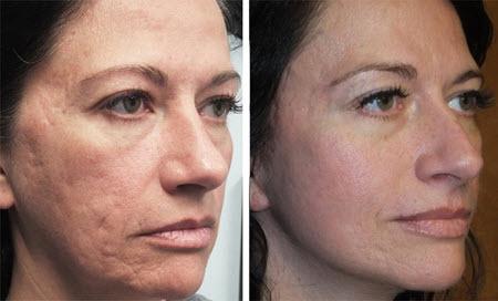 Фото до и после лазерной шлифовки лица