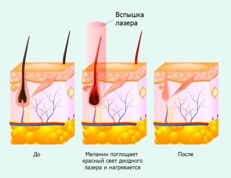 Особенности лазерной эпиляции